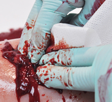 TrueClot blood simulant wound packing clotting with gauze